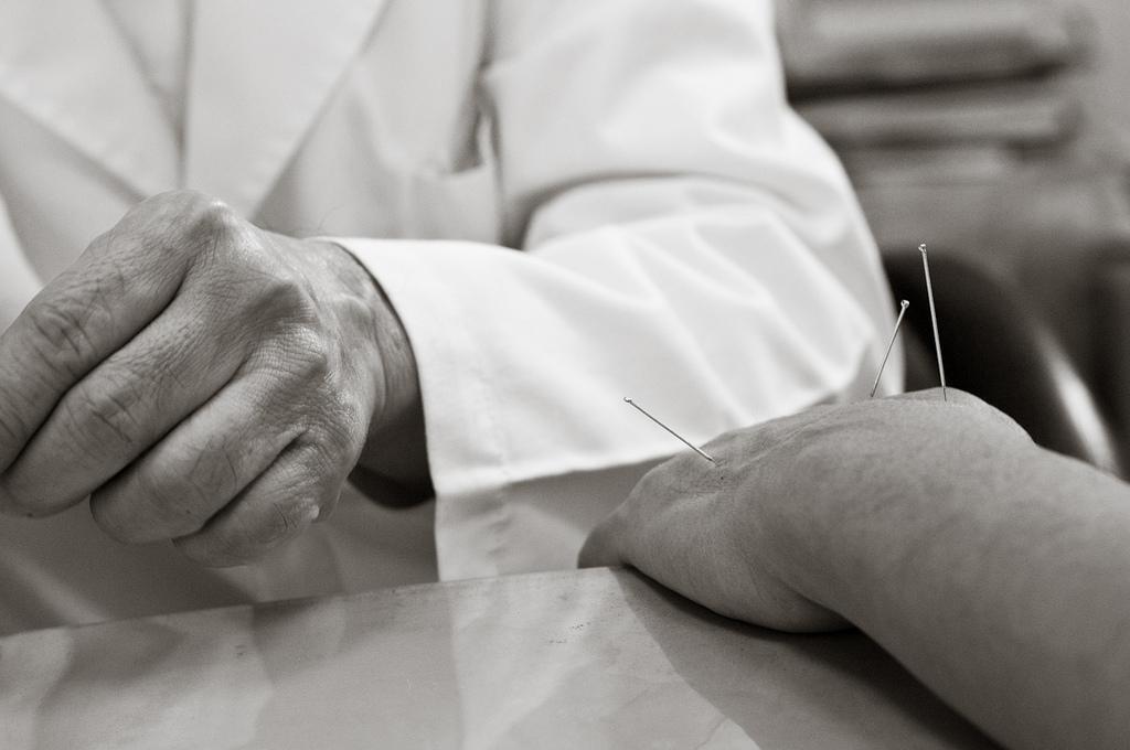 Sobre o direito de praticar a acupuntura no Brasil